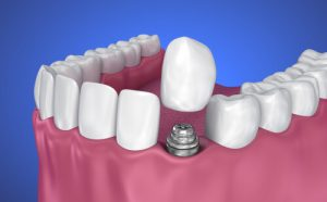 hole in tooth and implant