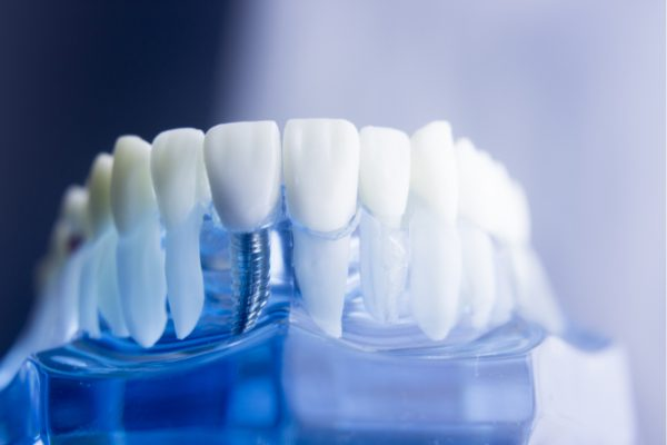 A hole in tooth can lead to tooth loss-the solution is dental implants
