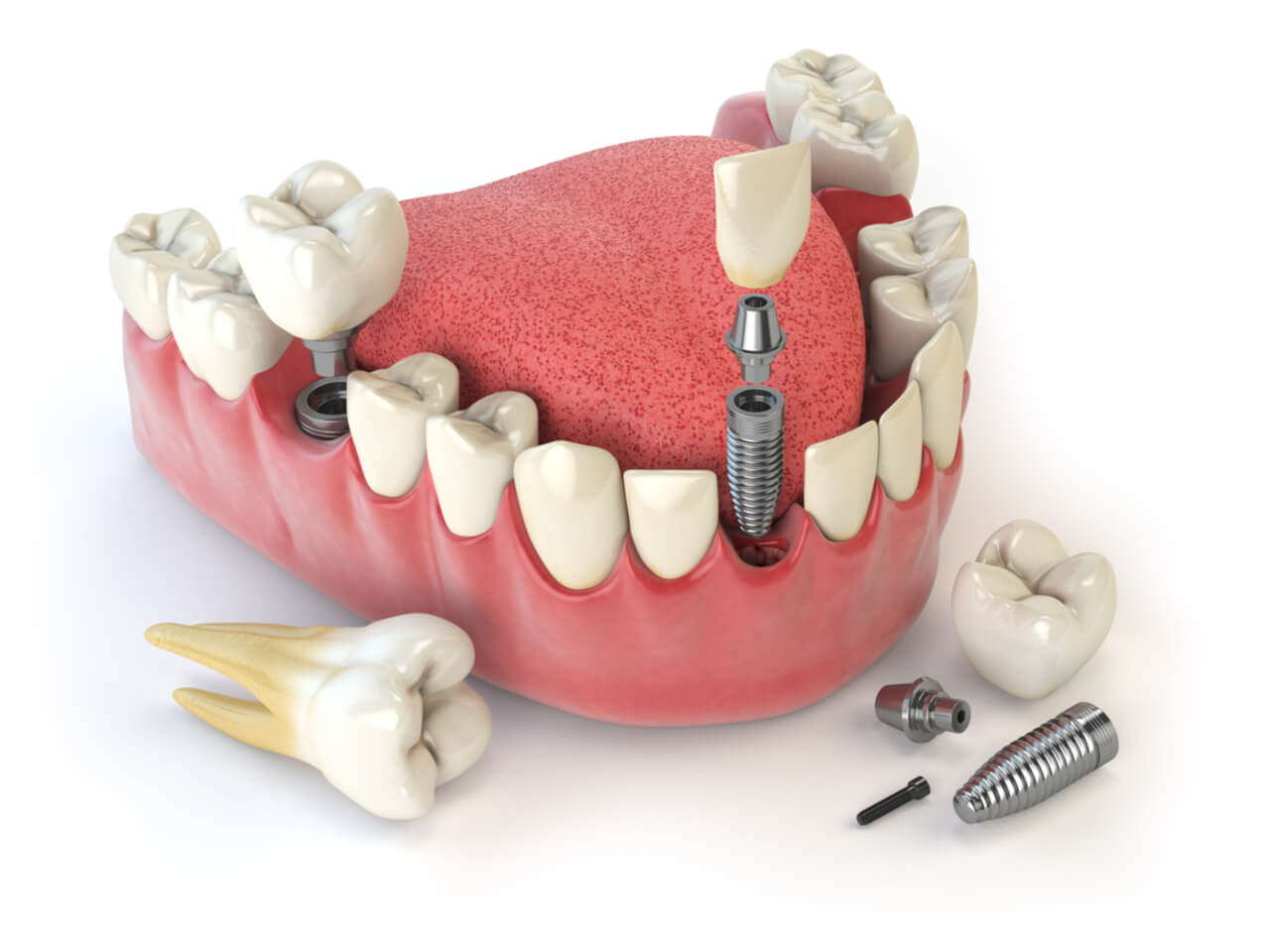 multiple tooth implants