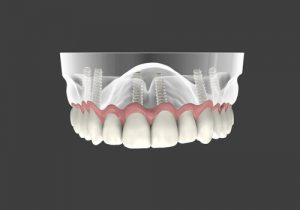 newest dental implant technology