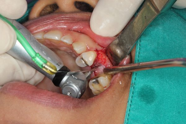 Dental implant surgery pain