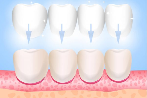 When to use Veneers or Lumineers for Dental Care.