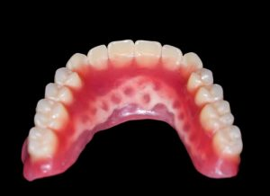 permanent bridge vs removable partial denture