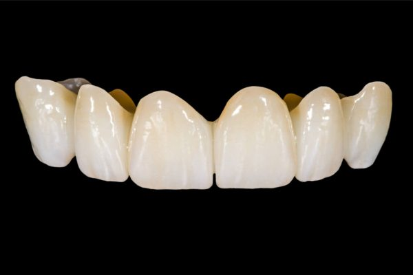 Permanent bridge Vs Removable Partial Dentures, Which Is Better?