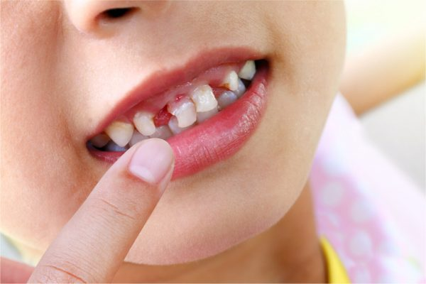Dealing with white spots on child´s teeth