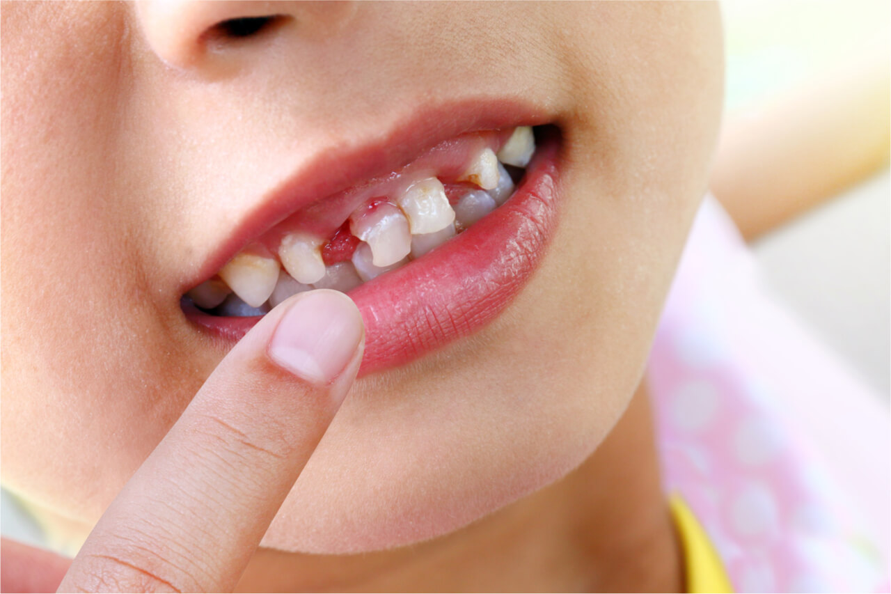 white spots on child's teeth