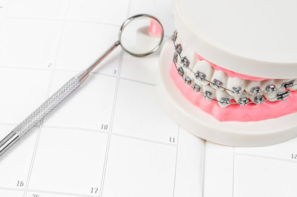 How long does it take to get braces put on? and other questions about dental braces