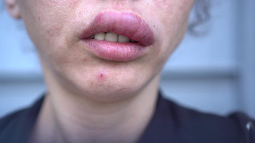 upper lip swelling