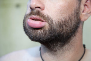 what to do for swollen lips after dental work