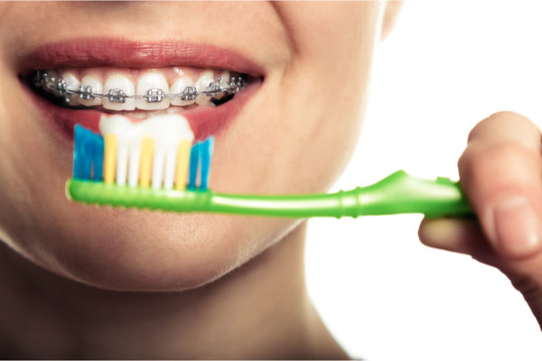 How To Brush Teeth With Braces: Is There A Proper Way?