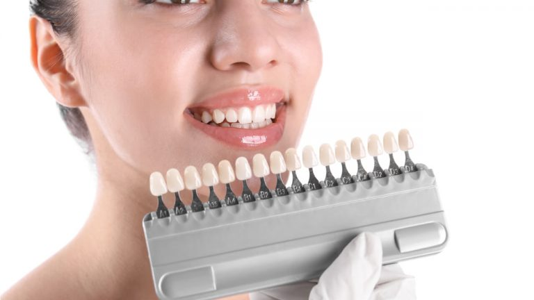 What Is The Difference Between Crowns Vs Veneers